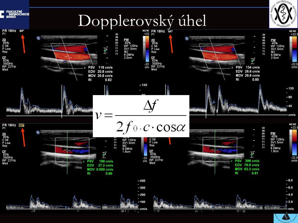Dopplerovský úhel cos 86 0.07