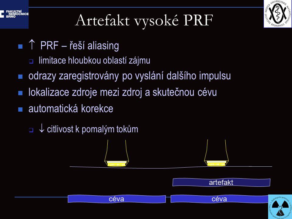 Artefakt vysoké PRF  PRF – řeší aliasing