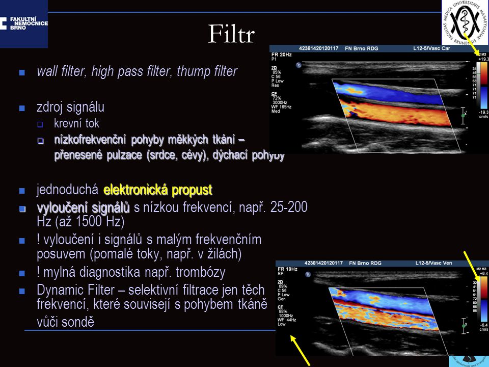 Filtr wall filter, high pass filter, thump filter zdroj signálu