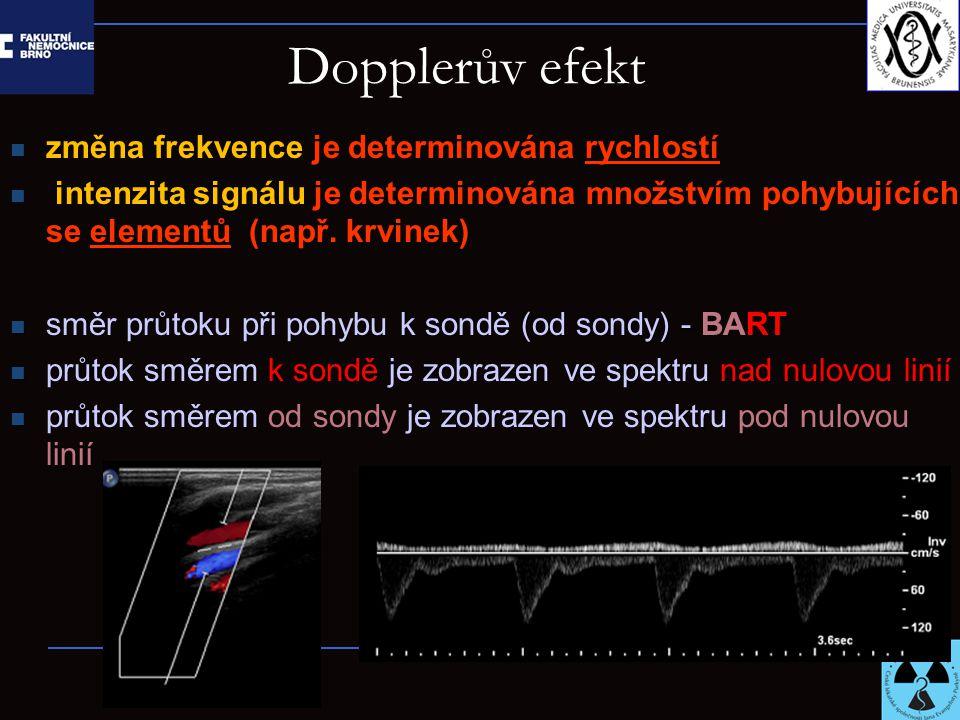 Dopplerův efekt změna frekvence je determinována rychlostí