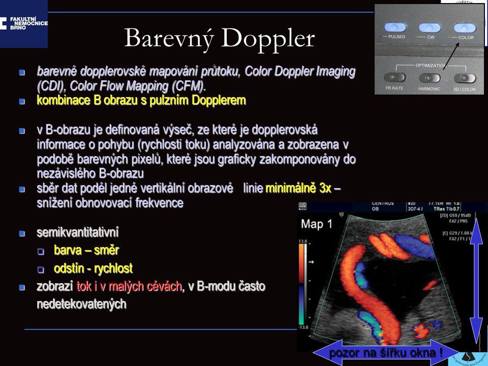 Barevný Doppler barevné dopplerovské mapování průtoku, Color Doppler Imaging (CDI), Color Flow Mapping (CFM).