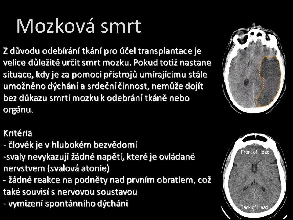 Mozková smrt