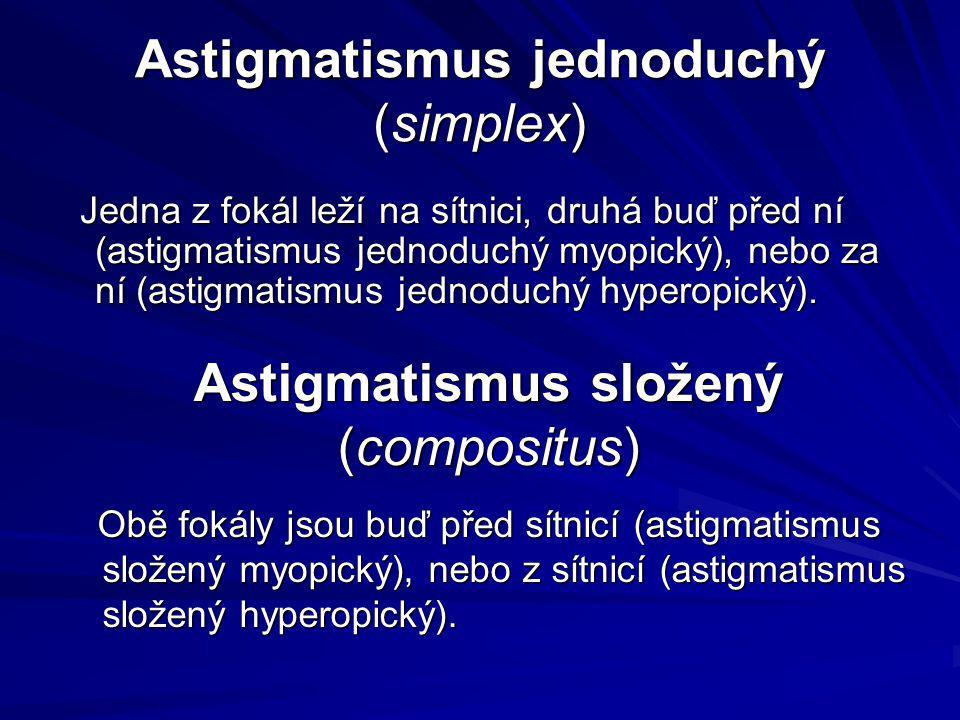 Astigmatismus jednoduchý (simplex)