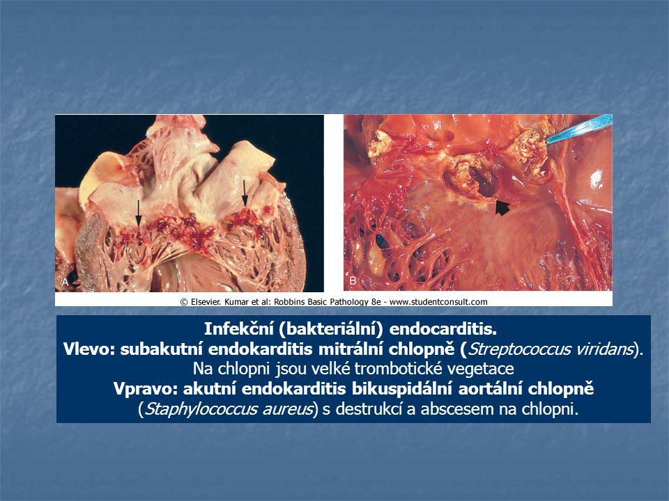Infekční (bakteriální) endocarditis.