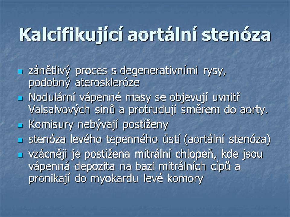 Kalcifikující aortální stenóza