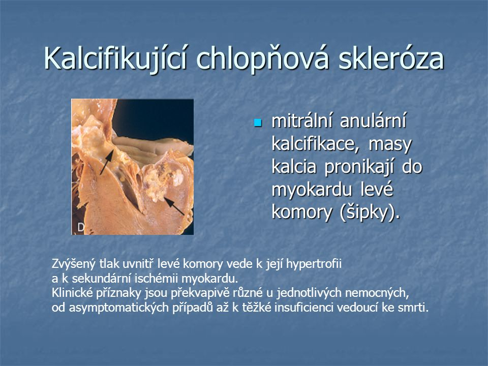 Kalcifikující chlopňová skleróza