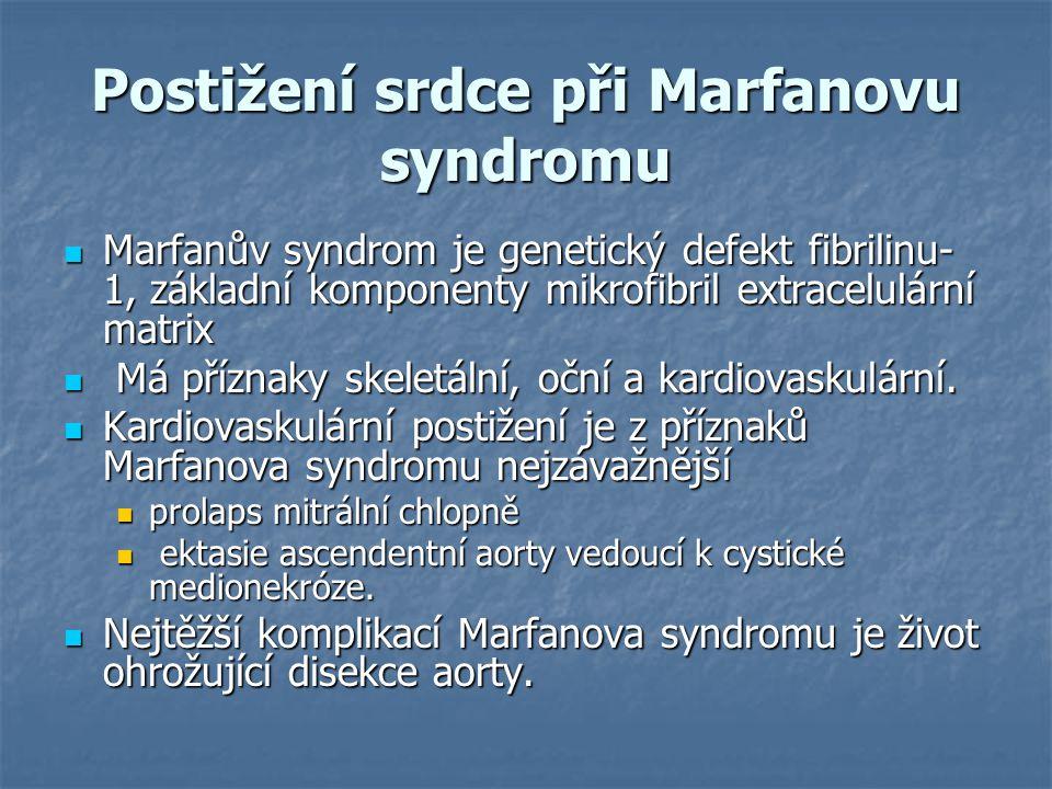 Postižení srdce při Marfanovu syndromu