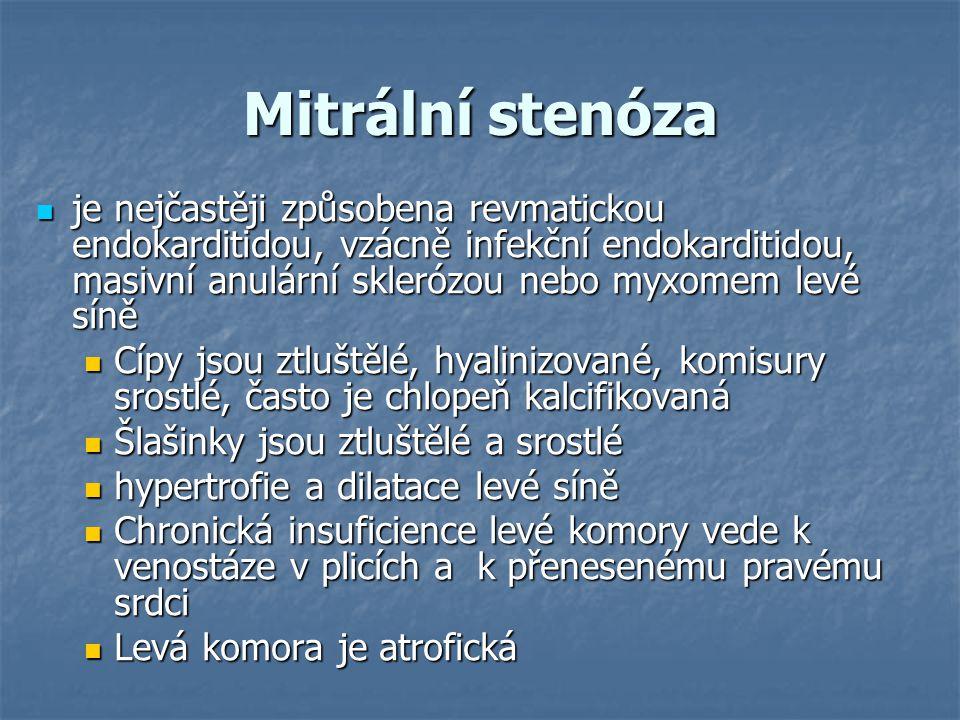 Mitrální stenóza
