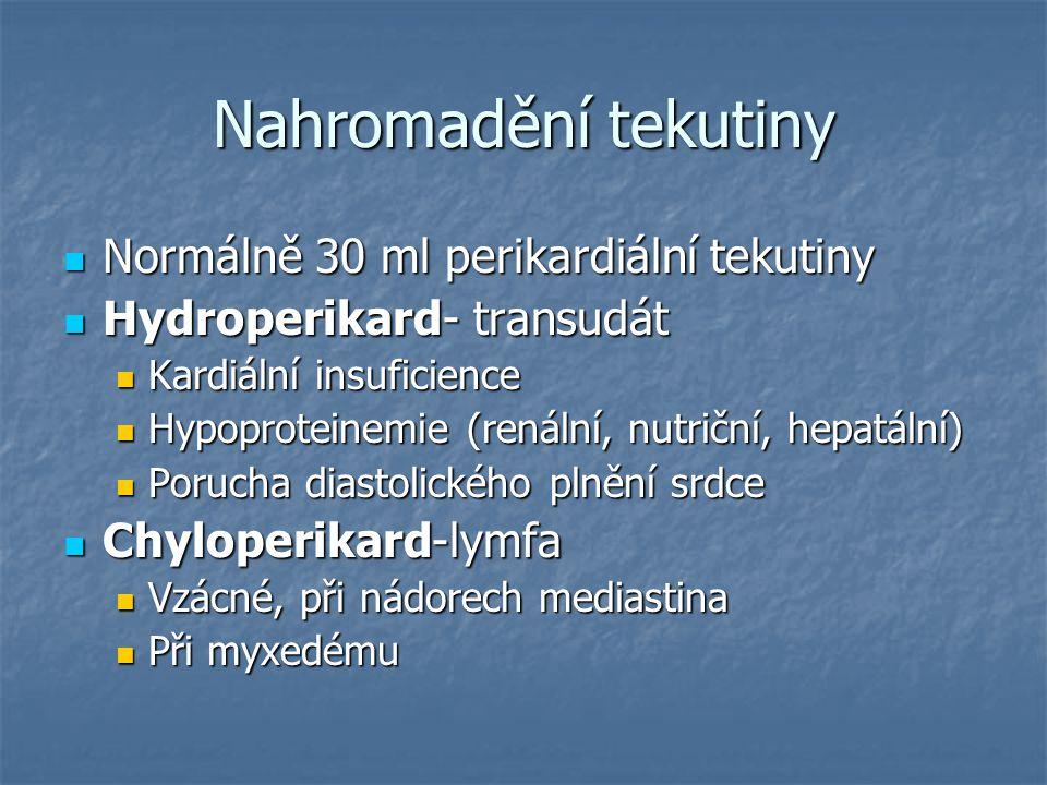 Nahromadění tekutiny Normálně 30 ml perikardiální tekutiny