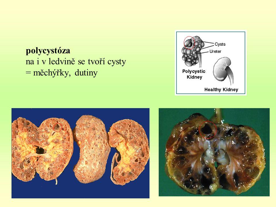 polycystóza na i v ledvině se tvoří cysty = měchýřky, dutiny