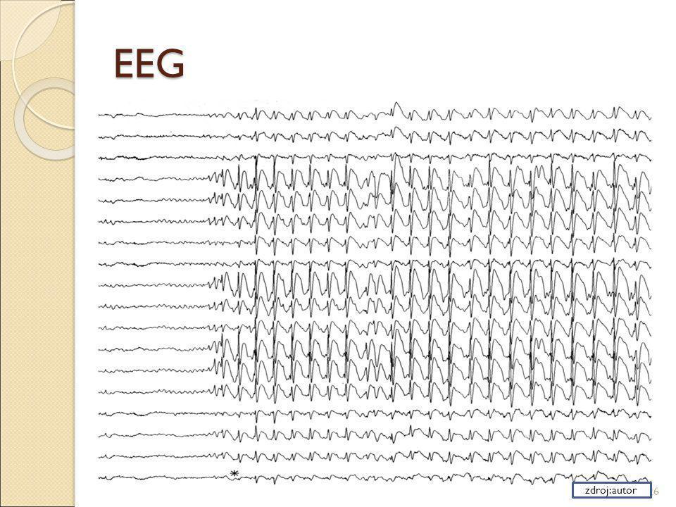 EEG zdroj:autor