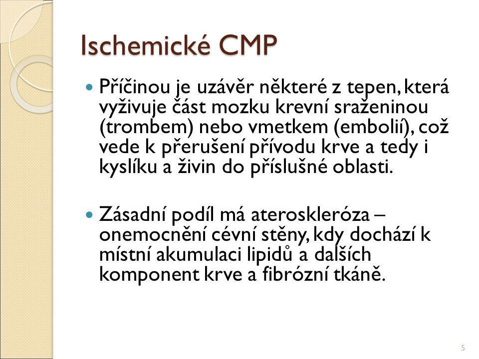 Ischemické CMP