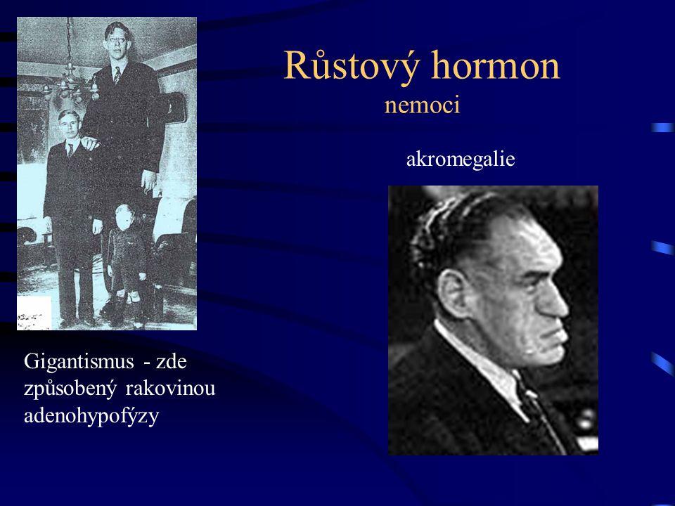 Růstový hormon nemoci akromegalie