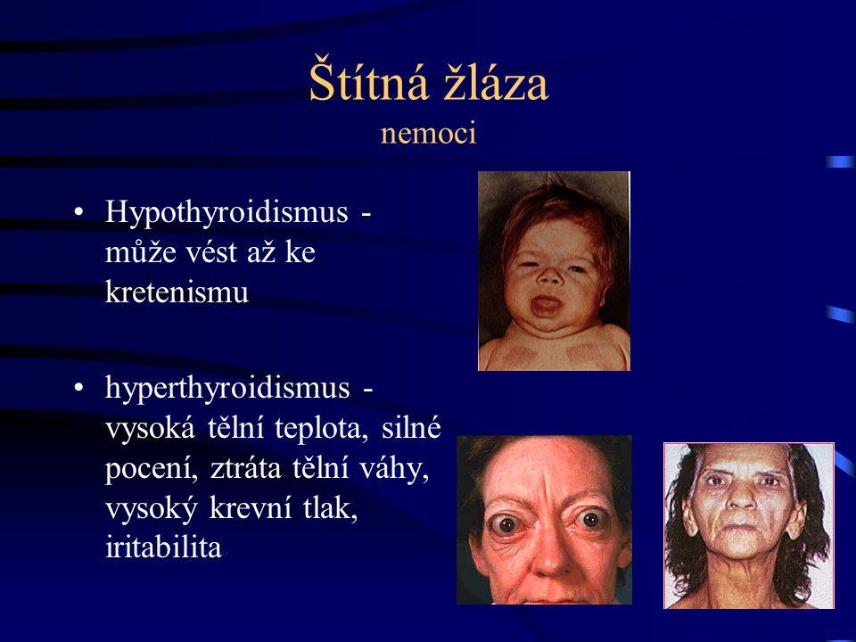 Štítná žláza nemoci Hypothyroidismus - může vést až ke kretenismu