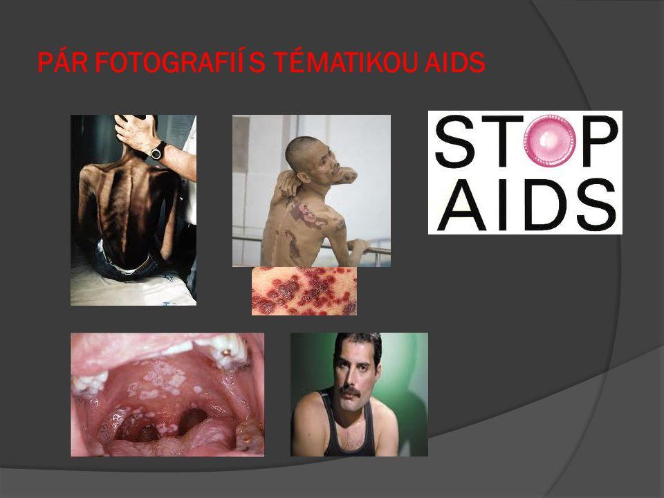 PÁR FOTOGRAFIÍ S TÉMATIKOU AIDS