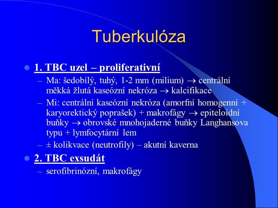 Tuberkulóza 1. TBC uzel – proliferativní 2. TBC exsudát