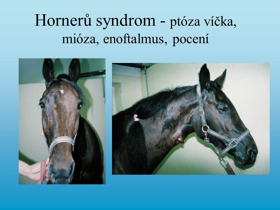 Hornerů syndrom - ptóza víčka, mióza, enoftalmus, pocení