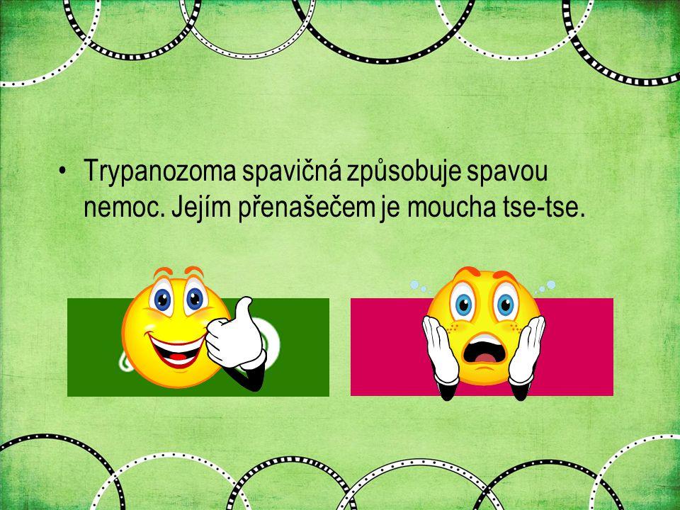 Trypanozoma spavičná způsobuje spavou nemoc