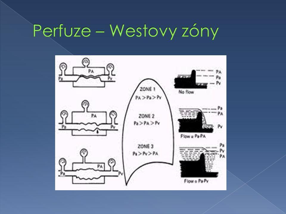 Perfuze – Westovy zóny