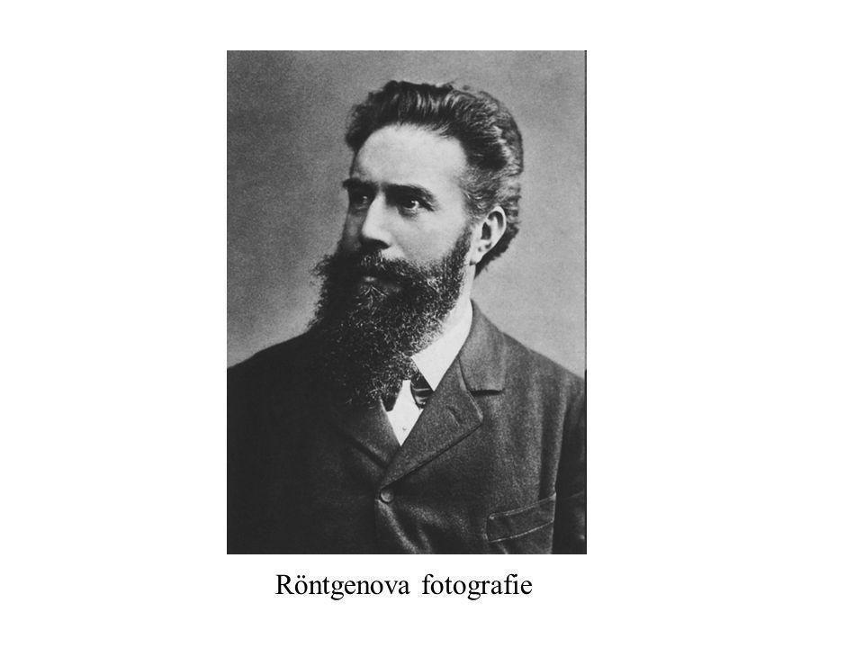 Röntgenova fotografie