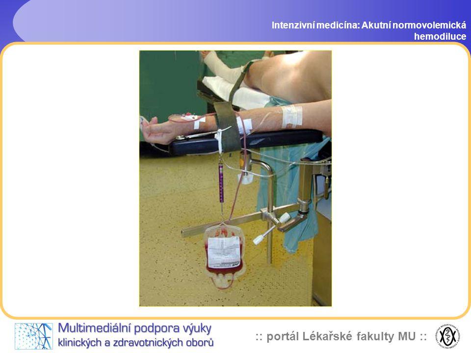 Intenzivní medicína: Akutní normovolemická hemodiluce