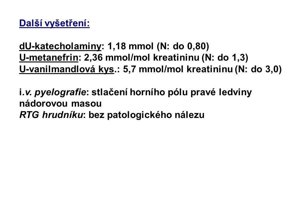 Další vyšetření: dU-katecholaminy: 1,18 mmol (N: do 0,80) U-metanefrin: 2,36 mmol/mol kreatininu (N: do 1,3)