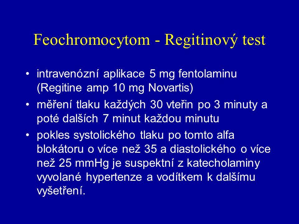 Feochromocytom - Regitinový test