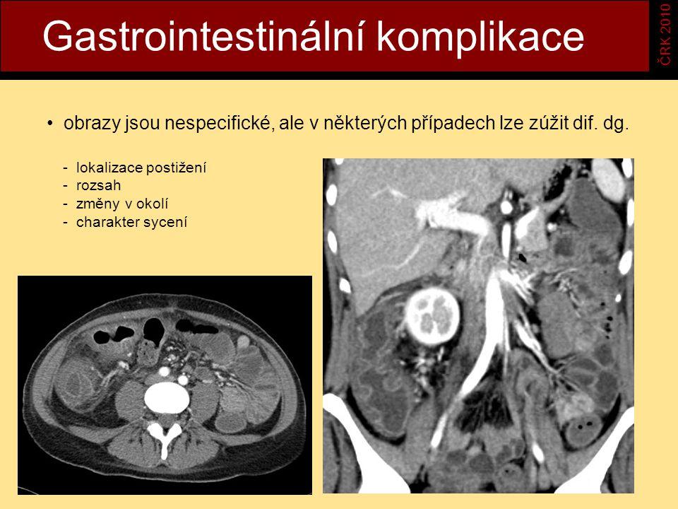 Gastrointestinální komplikace