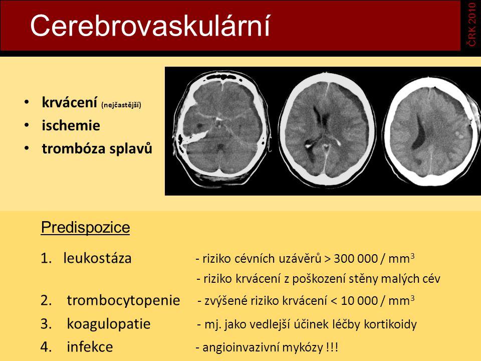 Cerebrovaskulární krvácení (nejčastější) ischemie trombóza splavů