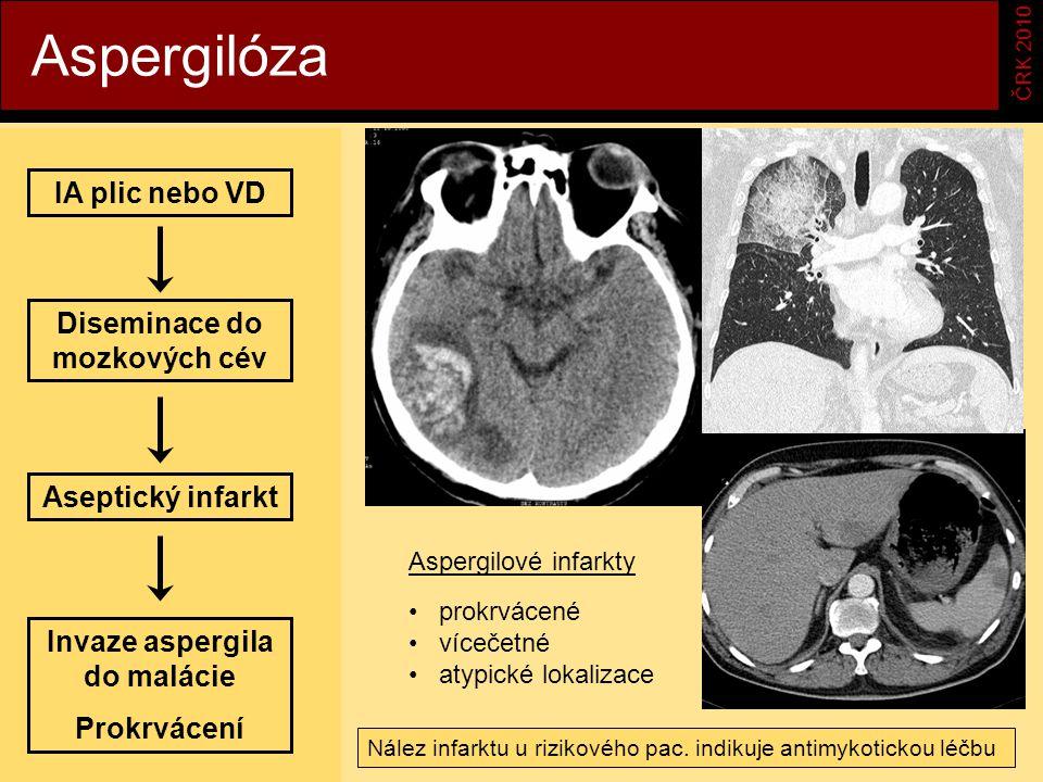 Diseminace do mozkových cév Invaze aspergila do malácie