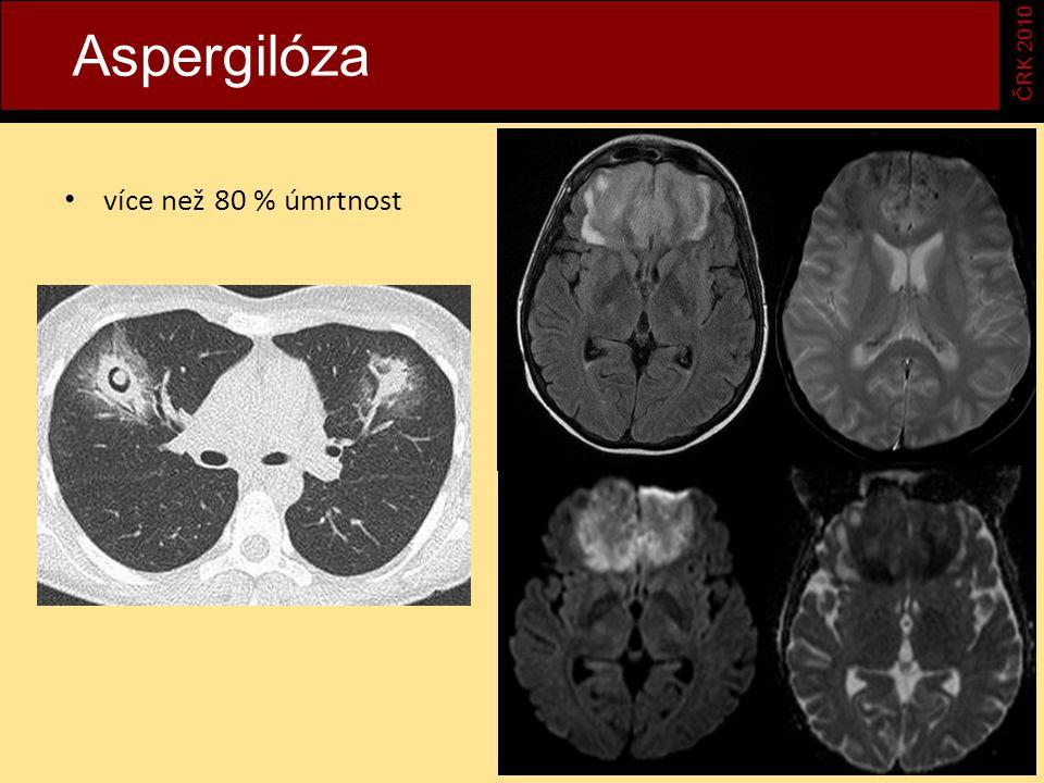 Aspergilóza ČRK 2010 více než 80 % úmrtnost
