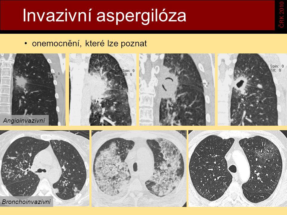 Invazivní aspergilóza