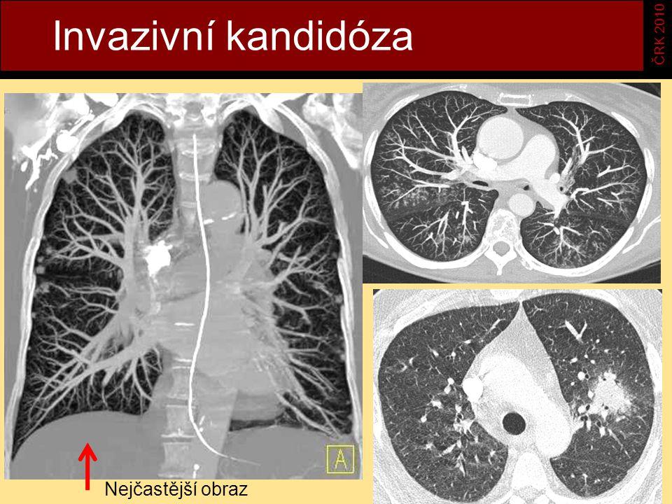 Invazivní kandidóza ČRK 2010 Nejčastější obraz