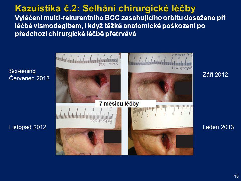 Kazuistika č.2: Selhání chirurgické léčby Vyléčení multi-rekurentního BCC zasahujícího orbitu dosaženo při léčbě vismodegibem, i když těžké anatomické poškození po předchozí chirurgické léčbě přetrvává