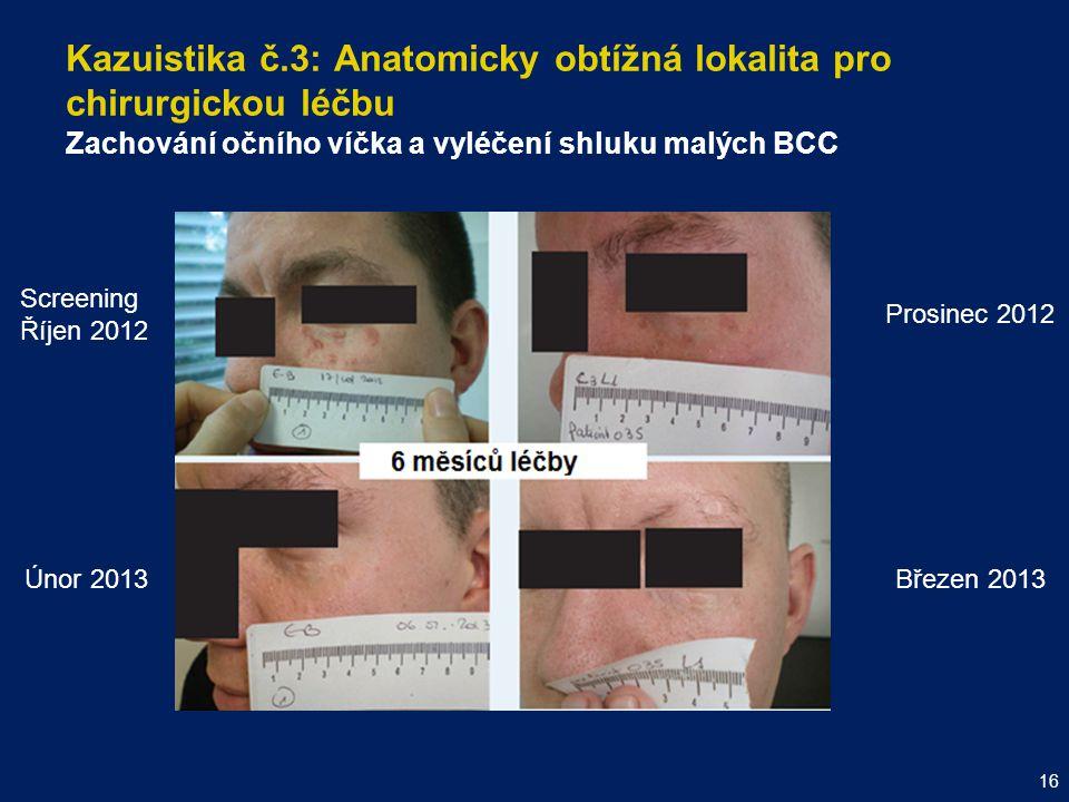 Kazuistika č.3: Anatomicky obtížná lokalita pro chirurgickou léčbu Zachování očního víčka a vyléčení shluku malých BCC