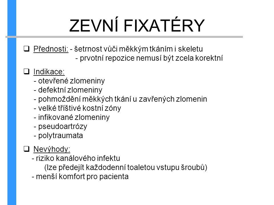 ZEVNÍ FIXATÉRY Přednosti: - šetrnost vůči měkkým tkáním i skeletu