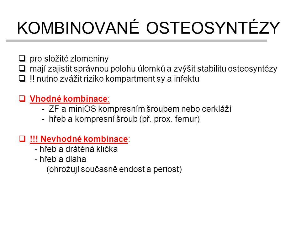 KOMBINOVANÉ OSTEOSYNTÉZY