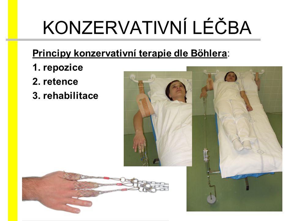 KONZERVATIVNÍ LÉČBA Principy konzervativní terapie dle Böhlera: