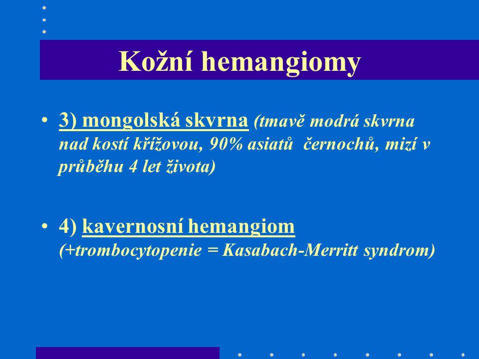 Kožní hemangiomy 3) mongolská skvrna (tmavě modrá skvrna nad kostí křížovou, 90% asiatů černochů, mizí v průběhu 4 let života)
