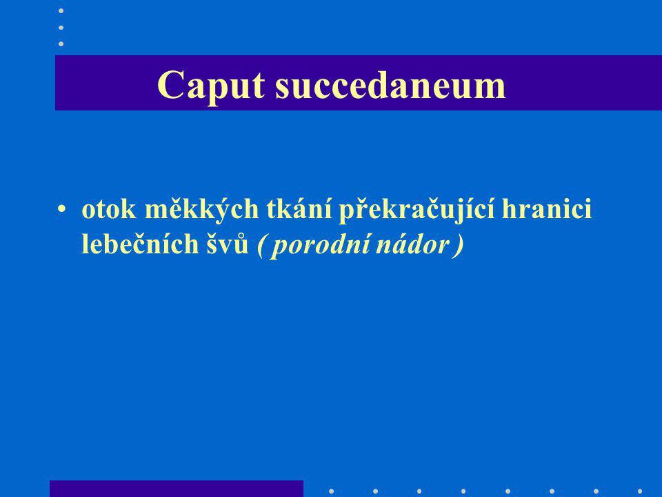 Caput succedaneum otok měkkých tkání překračující hranici lebečních švů ( porodní nádor )