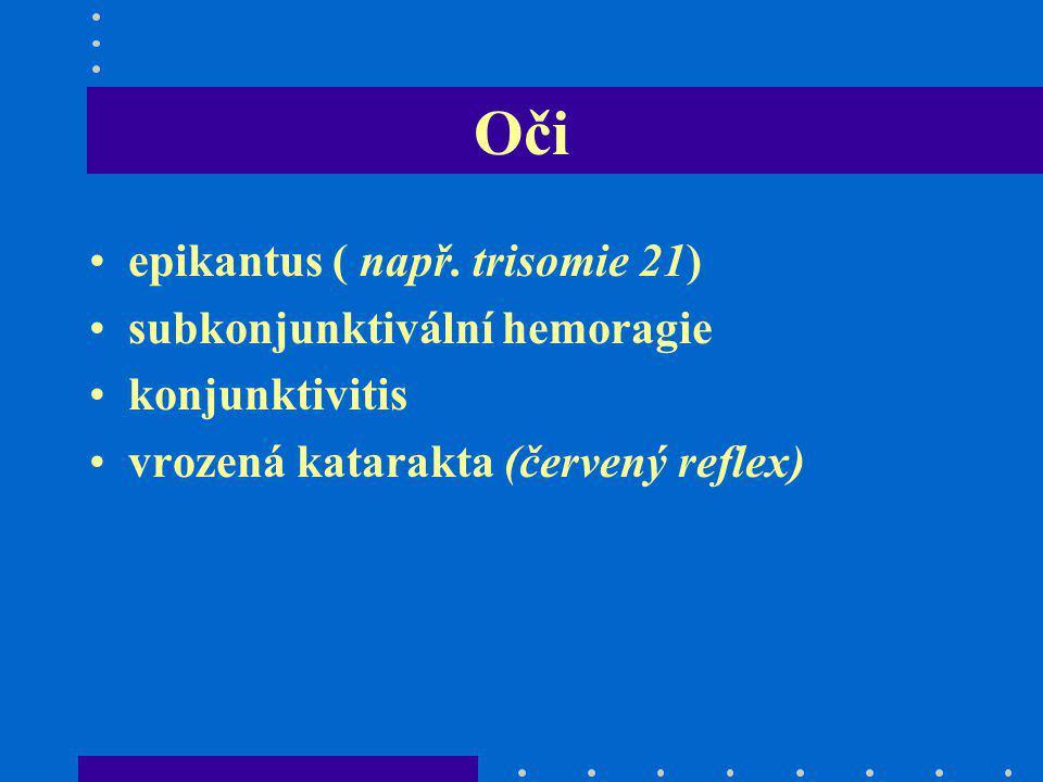 Oči epikantus ( např. trisomie 21) subkonjunktivální hemoragie