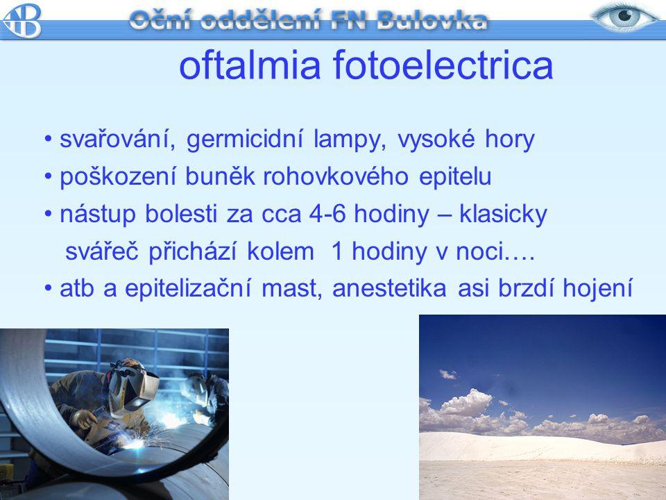 oftalmia fotoelectrica