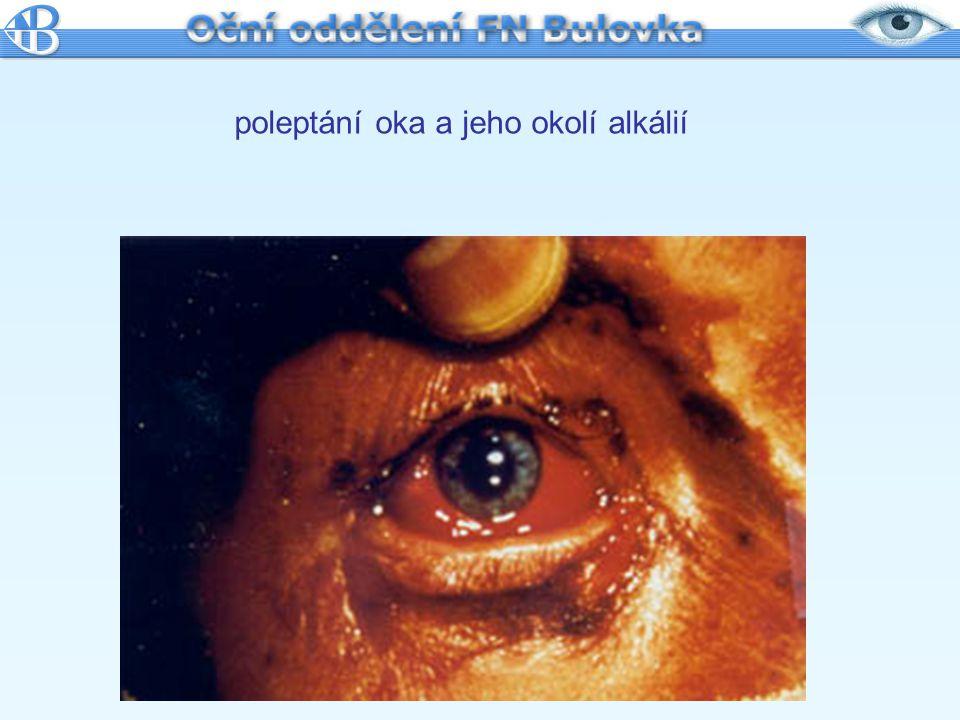 poleptání oka a jeho okolí alkálií