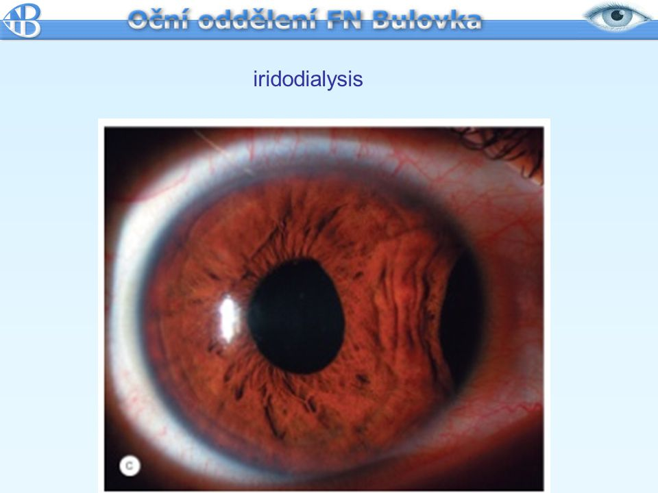 iridodialysis