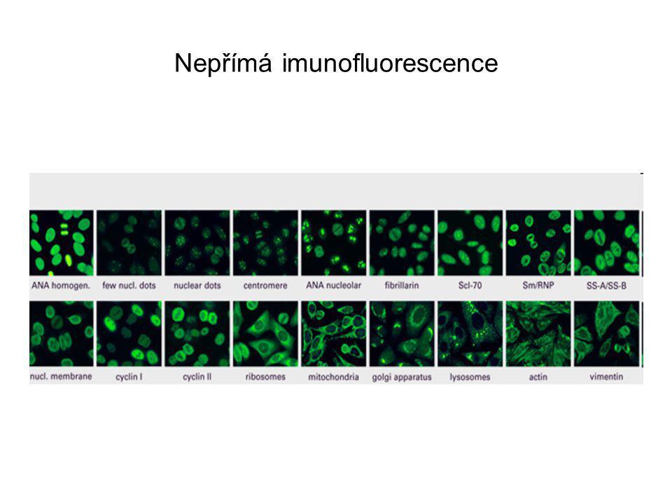 Nepřímá imunofluorescence