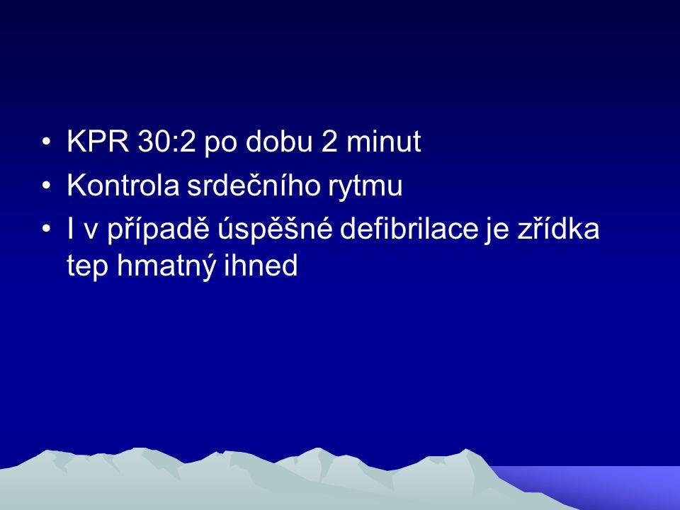 KPR 30:2 po dobu 2 minut Kontrola srdečního rytmu.
