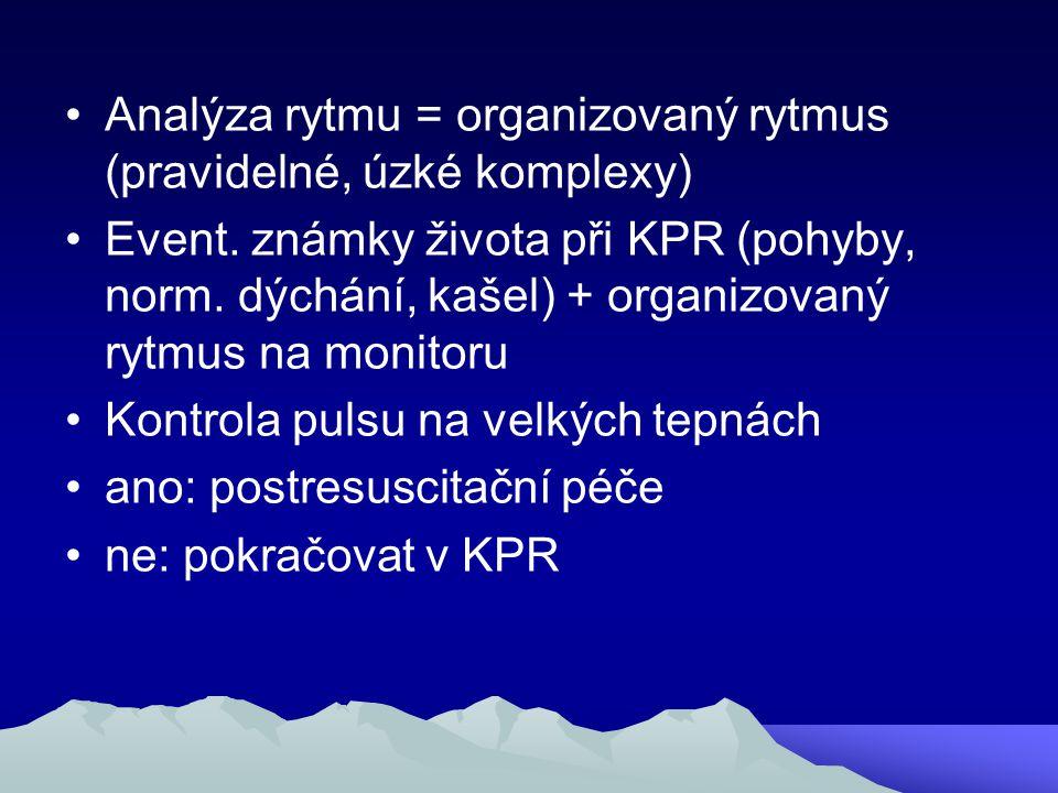 Analýza rytmu = organizovaný rytmus (pravidelné, úzké komplexy)