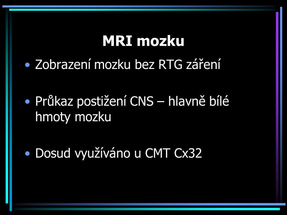 MRI mozku Zobrazení mozku bez RTG záření