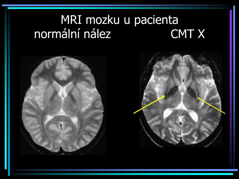 MRI mozku u pacienta normální nález CMT X