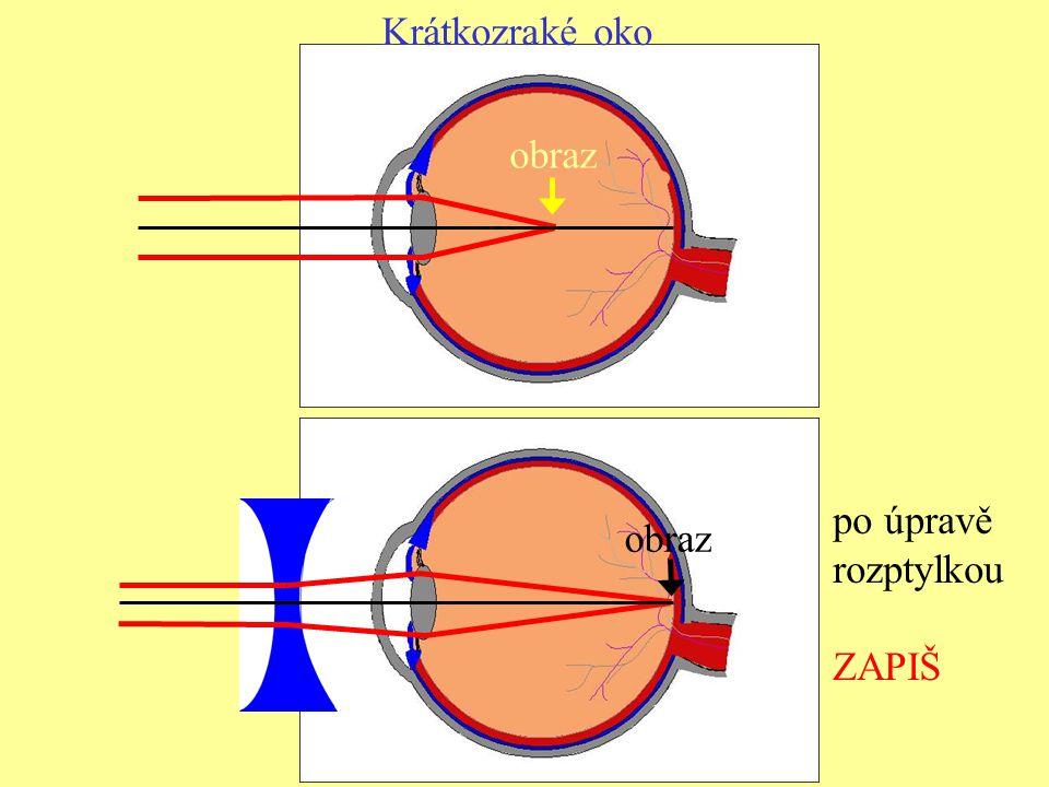 Krátkozraké oko obraz po úpravě rozptylkou ZAPIŠ obraz